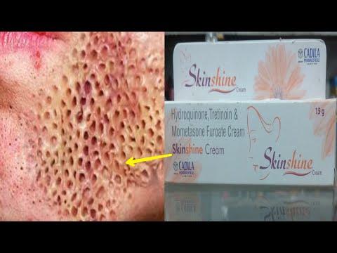 Skinshine Cream के SIDE EFFECTS | सच या अफवाह | Hindi | Dazlor Lifestyle