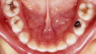 Get Rid Of A Toothache Instantly At Home | Best Tooth Pain Cavity Relief Do It Yourself