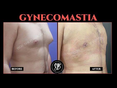 gynecomastia-surgery-|-male-breast-reduction-surgery-|-gynecomastia-surgery-before-and-after