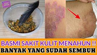 Mujarab!! Penyakit Kulit Panu, Kadas Kurap Kutu Air dan Gatal-gatal Langsung Lengkap ..
