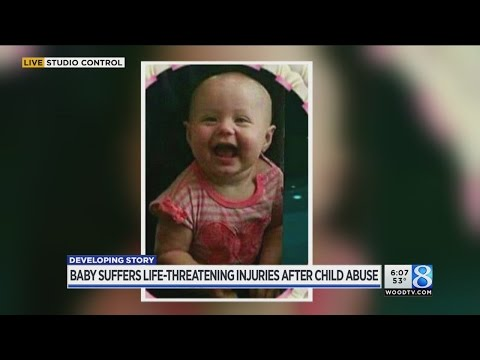 Baby suffers life-threatening injuries after child abuse