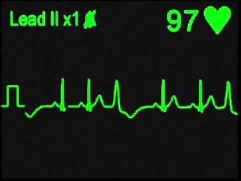 Ventricular Trigeminy - ECG SImulator - Arrhythmia Simulator
