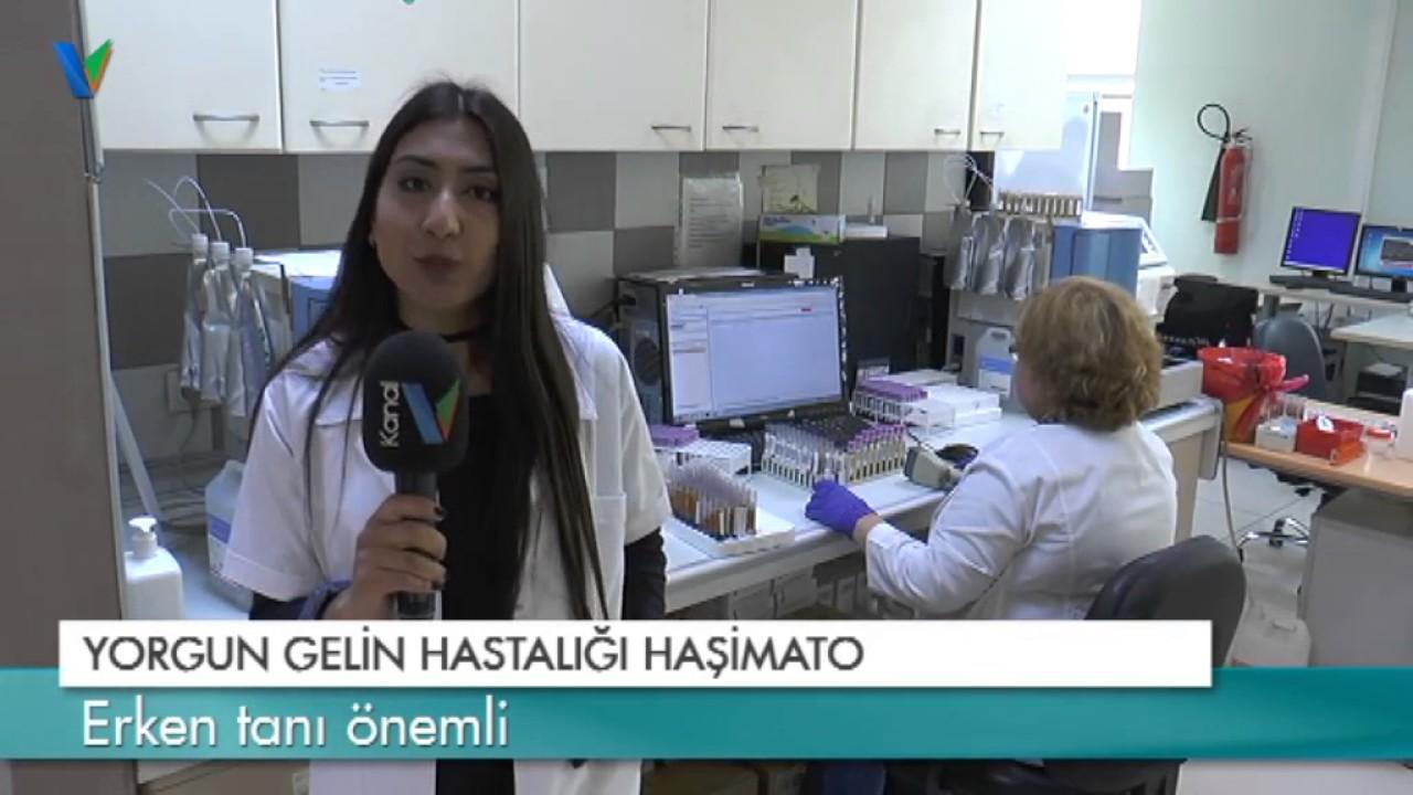 Haşimato hastalığı nasıl tedavi edilir