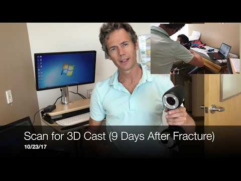 3D Printed Cast: Process and Review