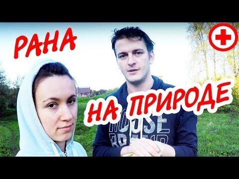 Раны / Болезни на Р / Медицинская энциклопедия