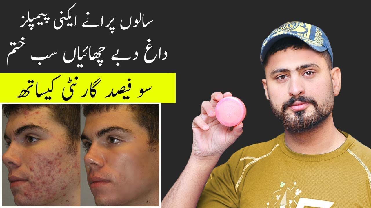 Best Cream For Cure & Treatment For Remove Pimples Acne On Face | Acne Pimples Removal On Face