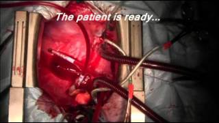 Heart transplantation(The video shows an orthotopic heart transplantation using the
