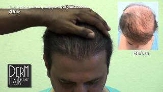 Body hair transplant, Hairpiece Problems, toupee problems  - A permanent solution