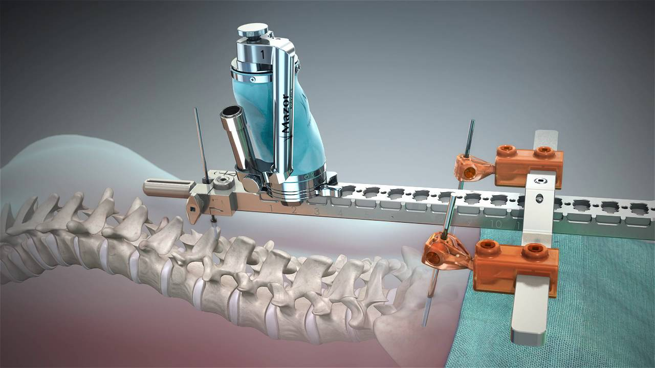 Image result for Robotic spine surgery