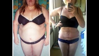 Tummy Tuck Surgery 5 weeks post op RESULTS Update and Complications