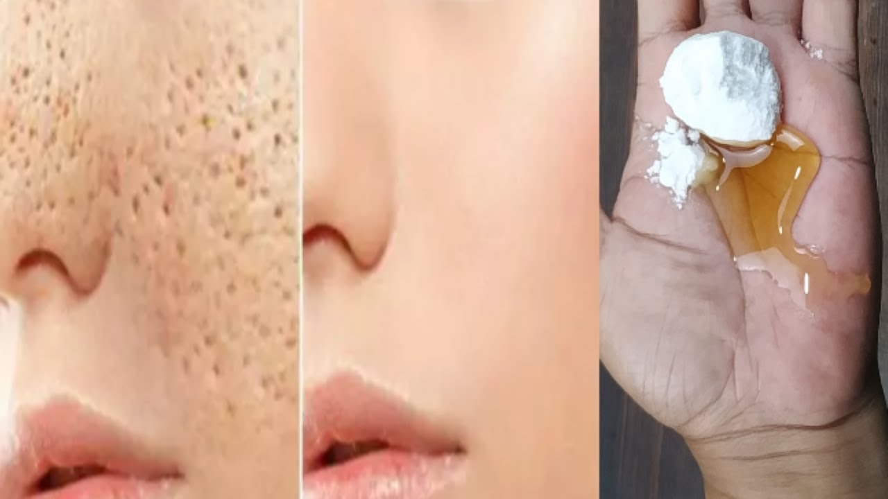 SECRET RECIPE: How to get rid of large open pores permanently in just 3 days