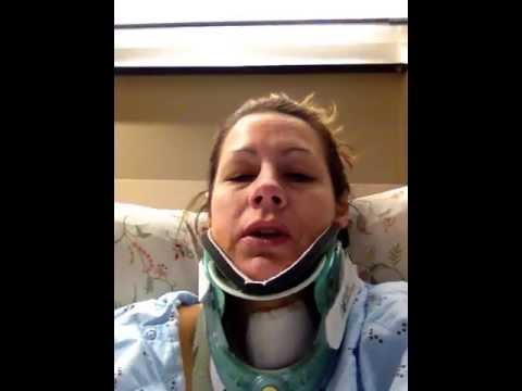 Taleah's Anterior cervical discetomy with bone graft: Day 1- right after surgery