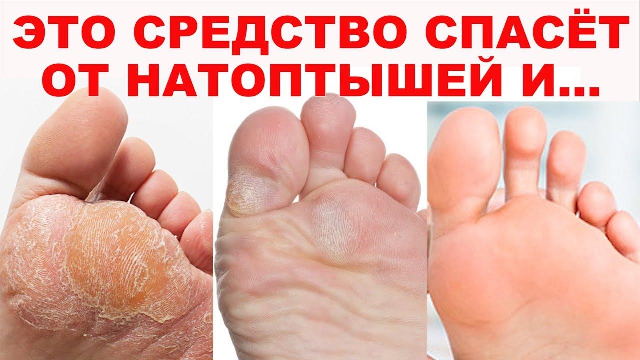 ИДЕАЛЬНЫЕ ПЯТОЧКИ КАК У МЛАДЕНЦА! Волшебное средство для ног (стопы) от натоптышей, мозолей, трещин