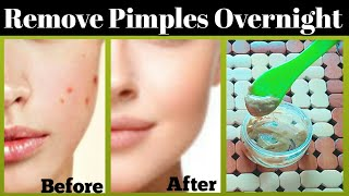 How to Remove Pimples & Acne Overnight|100% Natural  Acne Treatment|fast Result(Urdu/Hindi)