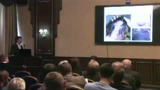 Ранняя диагностика меланомы кожи, роль дерматоскопии(Ранняя диагностика меланомы кожи, роль дерматоскопии К.м.н. И.Е. Синельников (Москва) Научно-практическая..., 2013-05-31T08:14:35.000Z)