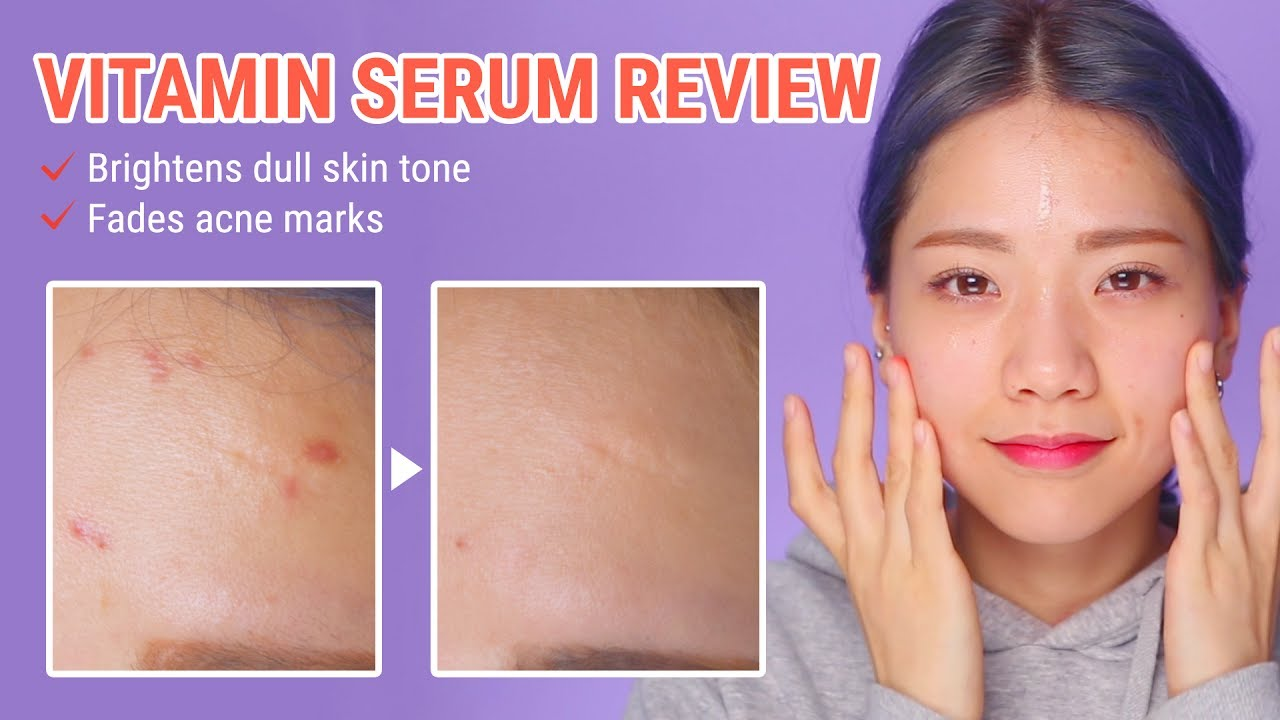 How To Fade Acne Scars In Just 2 Weeks | By Wishtrend Pure Vitamin C21 5  Advanced Serum