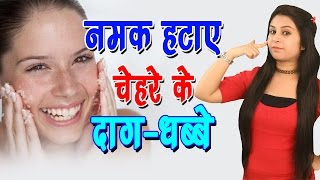 नमक हटाए चेहरे के दाग-धब्बे Home Remedies For Acne(Pimples) Marks | Beauty Tips For Skin - Lifestyle