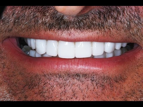 Video Procedure of Dental Veneers after Invisalign at Cosmetic Dental Associates