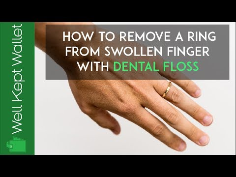 How To Remove A Ring From Swollen Finger With Dental Floss