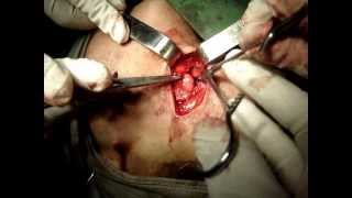 Submandibular Salivary Gland Excision