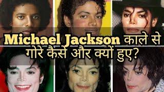 काले से गोरे क्यों और कैसे हुए Michael Jackson? Right to Shiksha #shorts