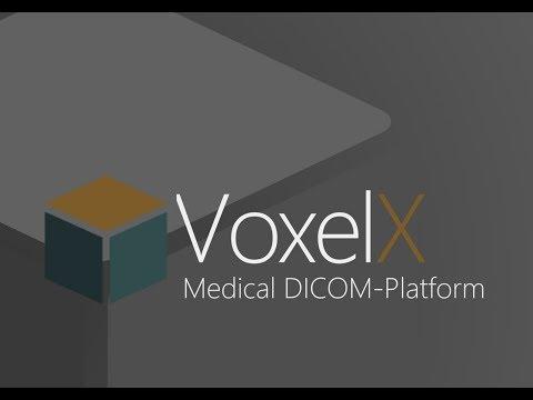 Обзор ICO VoxelX