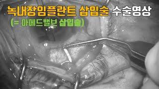 녹내장 수술 영상- 녹내장임플란트삽입술(아메드밸브 삽입…