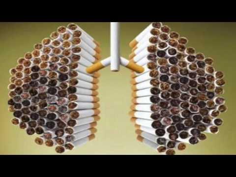 Плоскоклеточный рак лёгкого - прогноз, лечение, симптомы