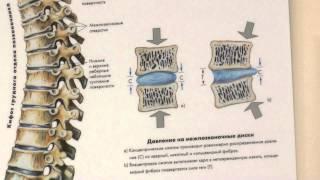 Почему образуется межпозвонковая грыжа? Как ее лечить? Можно ли обойтись без операции?(лечение позвоночника лечение грыжи позвоночника лечение шейного позвоночника лечение позвоночника петер..., 2014-05-23T12:19:01.000Z)
