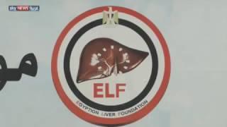 خطة مصرية للقضاء على التهاب الكبد الوبائي