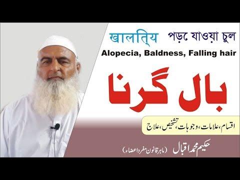 Alopecia   Baldness   Falling Hair   ??? ????    Al Huda Guidance