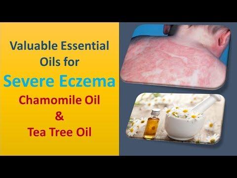 Valuable Essential Oils for Severe Eczema | Chamomile Oil & Tea Tree Oil
