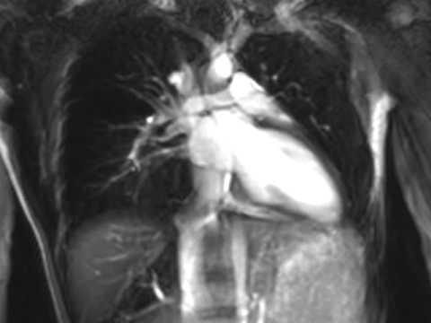 heart MRI of 13yo F (2 chamber view)