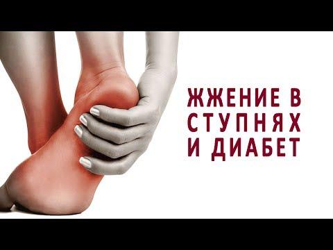 Отеки ног при сахарном диабете: причины и лечение