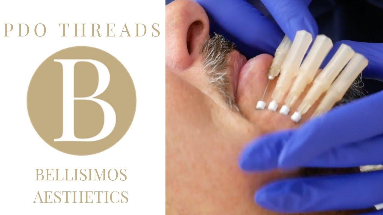 Thread Lift - Bellisimos Aesthetics