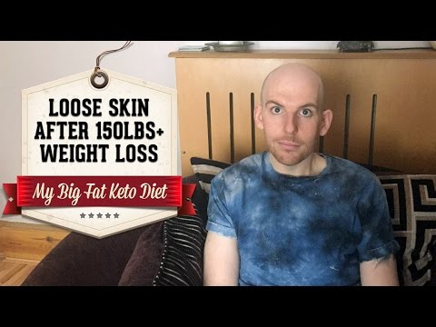 how to help loose skin