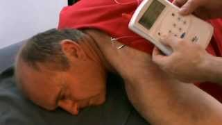 Acupuncture Electrical Stimulation at Wellacupuncture