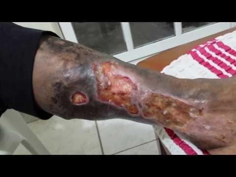 Stadi trombosi venosa