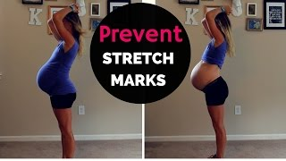 How Prevent Stretch Marks During Pregnancy 2nd Baby Weeks