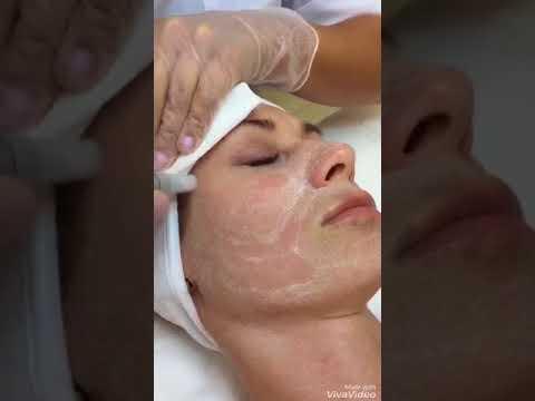 Механический пилинг лица. Клиника косметологии и дерматологии А Клиника.