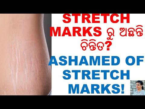 ୧୦ଟି ସହଜ ଉପାୟ STRETCH MARKS ରୁ ରକ୍ଷା ପାଇବା ପାଇଁ,TOP 10,TIPS STRETCH MARKS,ODIA,ODIA HOME REMEDIES,