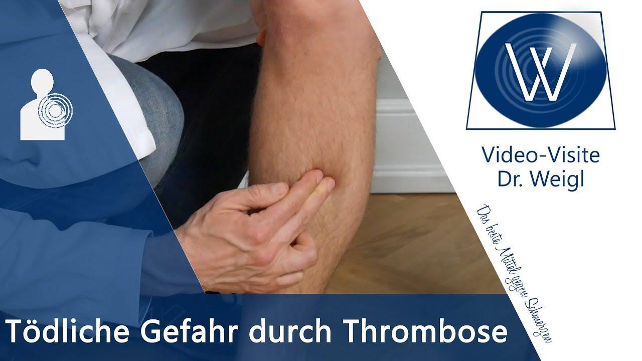 die todliche gefahr durch thrombose ursachen symptome tipps bei tiefer beinvenenthrombose tvt