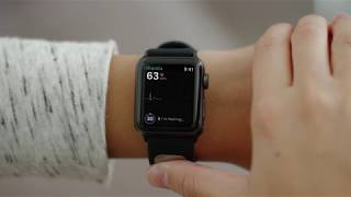 mqdefault - [amazon.de] AliveCor Kardia Band für Apple Watch (38mm) für 229€
