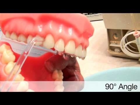 Waterpik Ultra Water Flosser -- Dental Professional Shows How To Use