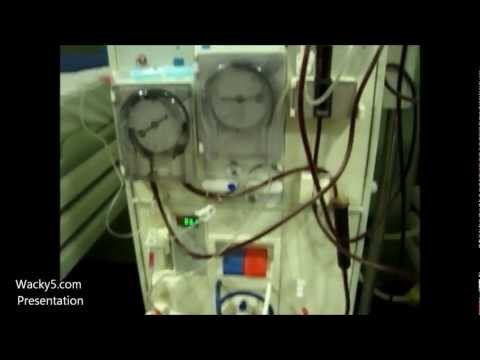 Dialysis Machine Parts And Indications Of Dialysis