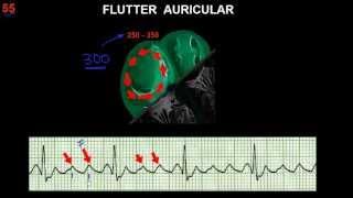 CURSO DE ELECTROCARDIOGRAFIA 55 - FLUTTER Y FIBRILACIÓN AURICULARES