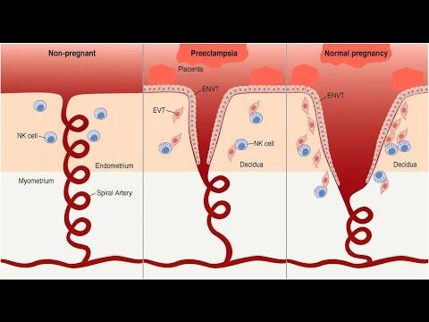 Preeclampsia Pathophysiology