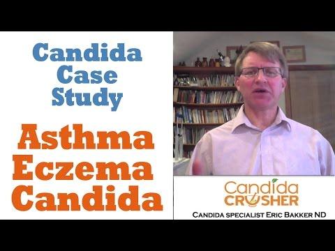 Case 23 Jeremy Asthma Eczema And Candida