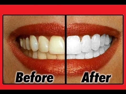 How To Whiten Your Teeth Fast And Naturally At Home Youtube