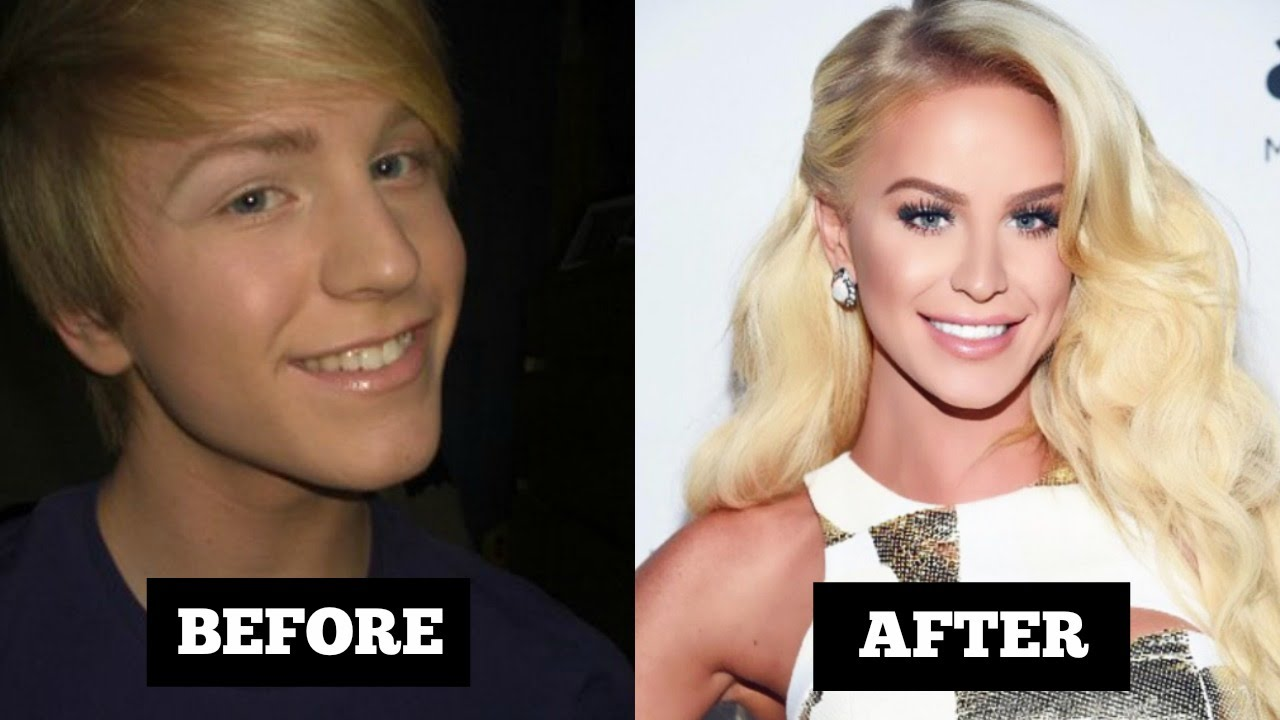 Amazing Transgender Before And After
